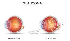eye doctor, eye exam, eyeglasses, eye glasses, optometrist, optometry